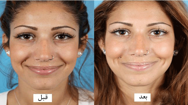 عمل زیبایی چال صورت