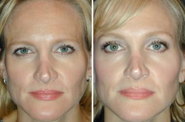 botox-brow-lift