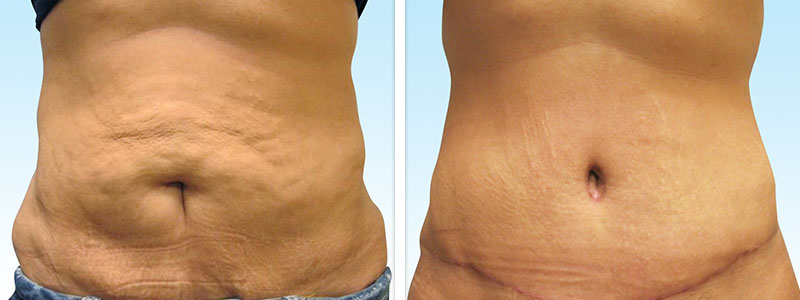 abdominoplasty_02_beforeafter