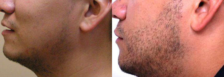 beard-transplant-left-173052